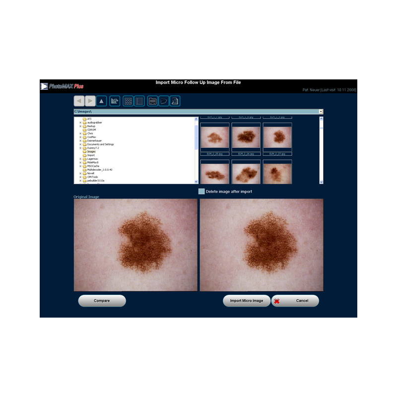 Software dermatoscopie PhotoMAX