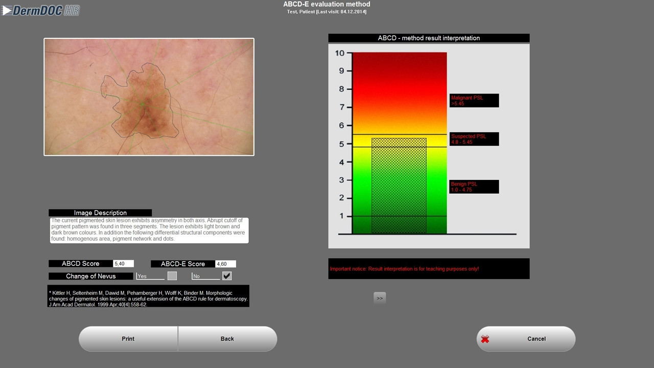 videoDermatoscop SkinDoc + software