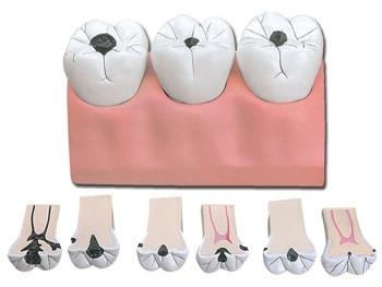 Mulaj carii dentare