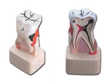 Mulaj patologia dentara
