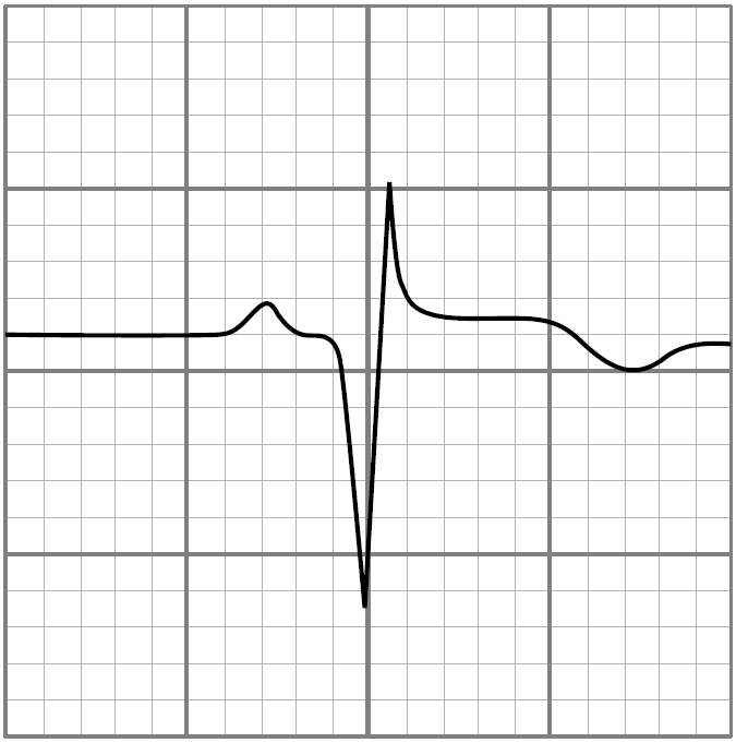 Verificare EKG