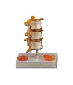 Mulaj hernie vertebrala